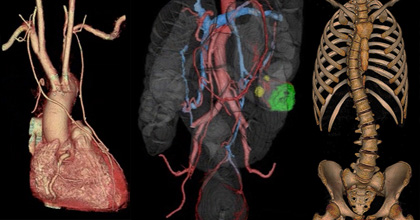 放射線診断科-研究ボタンb