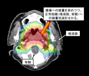図3:頭頚部癌(上咽頭)IMRT