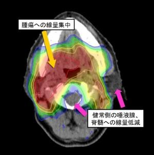 図4:頭頚部癌(中咽頭)IMRT