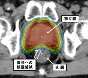 図2:前立腺IMRT